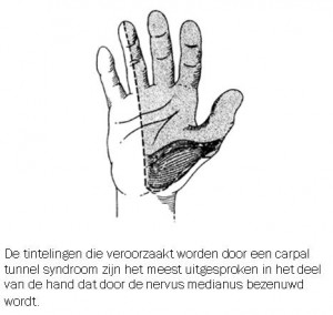 carpal tunnel syndroom